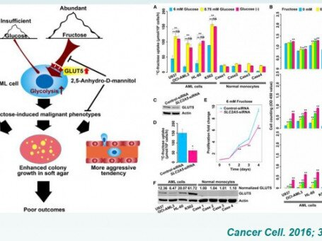 FRUCTOSE IN CANCER METABOLISM